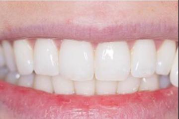 Breeze Dental - Whitening