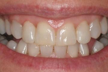 Breeze Dental - Orthodontics